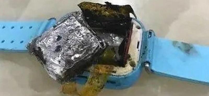 +18: Causó una quemadura fea en el brazo de una niña pequeña que explotó en un reloj inteligente.