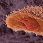 Megtalálták a rák Achilles-sarkát