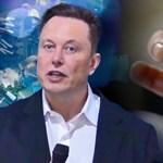 Elon Musk bemutatta a cyberpunk malacot, amelynek számítógép van az agyában