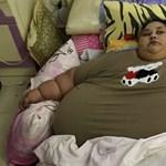 Élt a lehetőséggel a világ legkövérebb nője, és ledobta a súlya felét