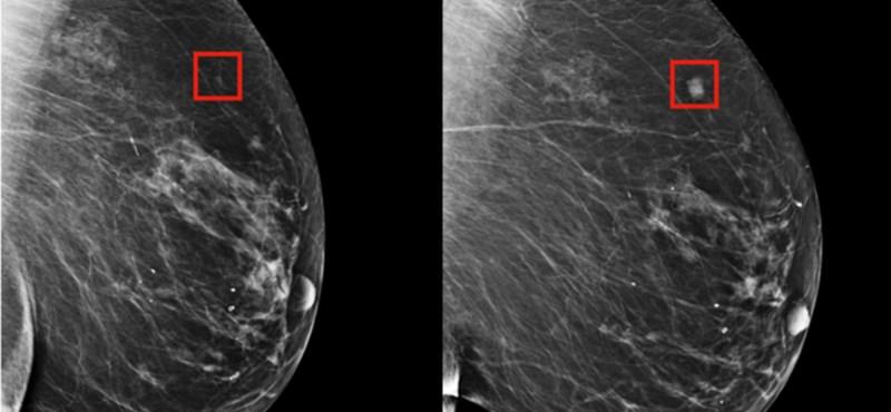 Ez a mesterséges intelligencia 5 évvel korábban jelezheti a mellrák kialakulását
