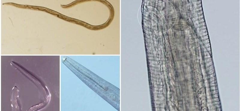 Négy lárvát találtak a nő szemében, az orvosok a paraziták elterjedésétől tartanak