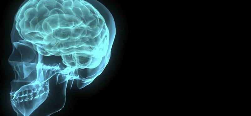 Mikor leszünk mesterségesen intelligensek?