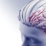 Magyar kutatók fejlesztettek ki valamit, ami segíthet a stroke-on átesett betegek gyógyulásában