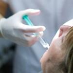 Sztrájkolhatnak szeptemberben a fogorvosok