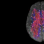 Rejtélyes agyi betegség jelent meg Kanadában