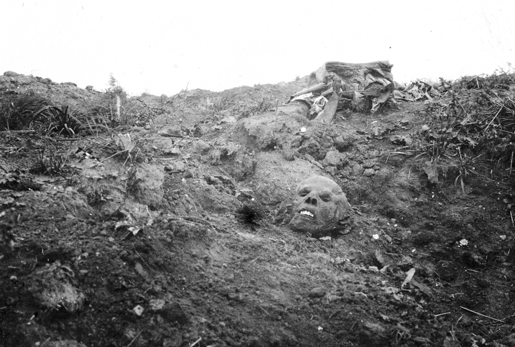 !!!!!!!! afp. Somme-i csata - The mummified head of a German soldier can be seen in the battlefield among the remains of his body during the Somme offensive, northern France, in July 1916, during World War 1. The Great War started in 1914 with the assassi