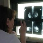 Összefüggés lehet a lombikos eljárás és a mellrák között – állítják magyar kutatók