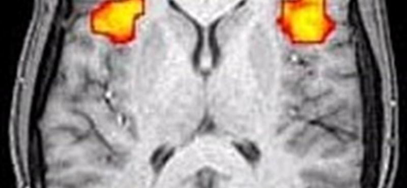 Megtalálták az emberi agy fejlődésének kulcsmechanizmusát?