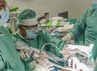 Tucatnyi műtét vár még a szétválasztott bangladesi ikrekre