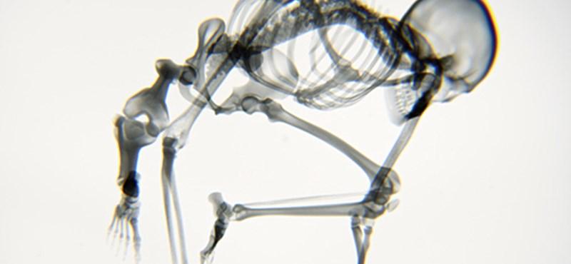 Röntgenképes videó: ilyen a test jógázás közben