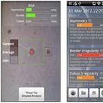 Így ellenőrizheti mobiljával a bőrrák jeleit