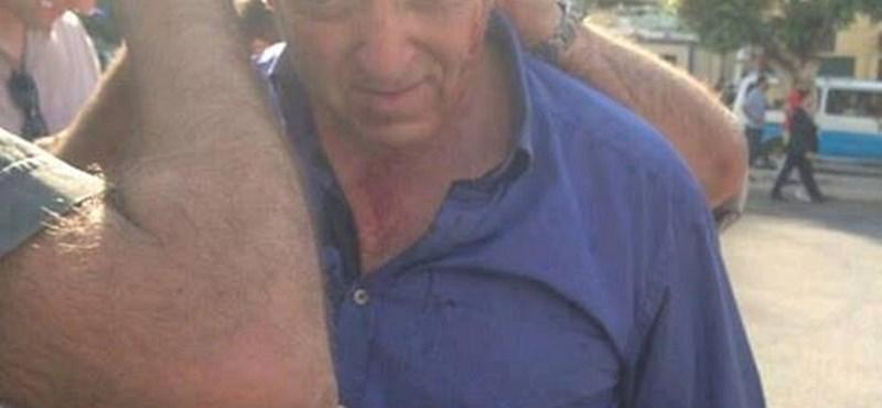 Fotó: kötözik a BBC riporterének vérző fejét Kairóban