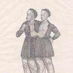 Hírnév és féltékenység: 140 éve halottak a leghíresebb sziámi ikrek