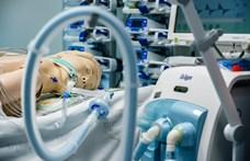 A Ford 50 ezer lélegeztetőgépet gyárt 100 nap alatt