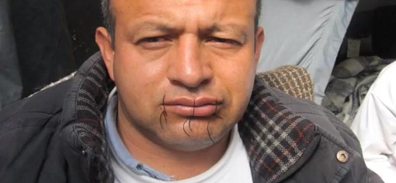 Erős idegzetűeknek: bevarrt szájjal tüntetnek a General Motors ellen