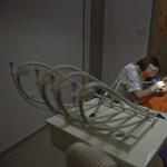 Az életmódunktól is függ a fogászati implantátumok élettartama