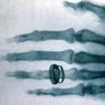 175 éve ezen a napon született Röntgen, akinek nagyon sokat köszönhetünk