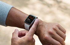 Még hogy nem hasznos: életet menthetett az Apple Watch EKG-funkciója