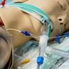 A külügy szerint azért voltak drágák a kínai lélegeztetőgépek, mert sokat rendeltek belőle