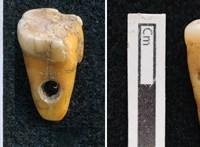 8500 éves emberi fogakat fedeztek fel Törökországban, de nem értik, milyen funkciójuk volt