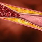Most akkor jó a koleszterin vagy nem? - tények és tévhitek