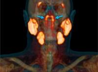 Véletlenül találtak egy új szervet az emberi testben