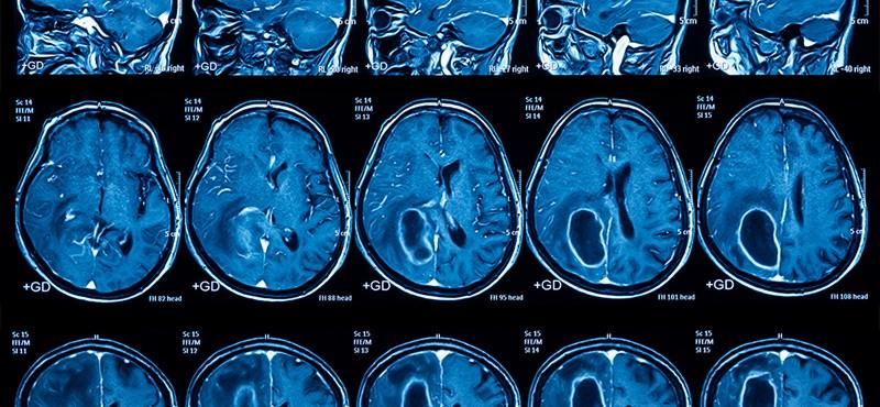 """""""Sürgősségi MRI-re utaltak be, jövő februárra kaptam időpontot"""""""