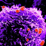 Sikerült meggyógyítani a világ legsúlyosabb gonorrheájával fertőzött férfit
