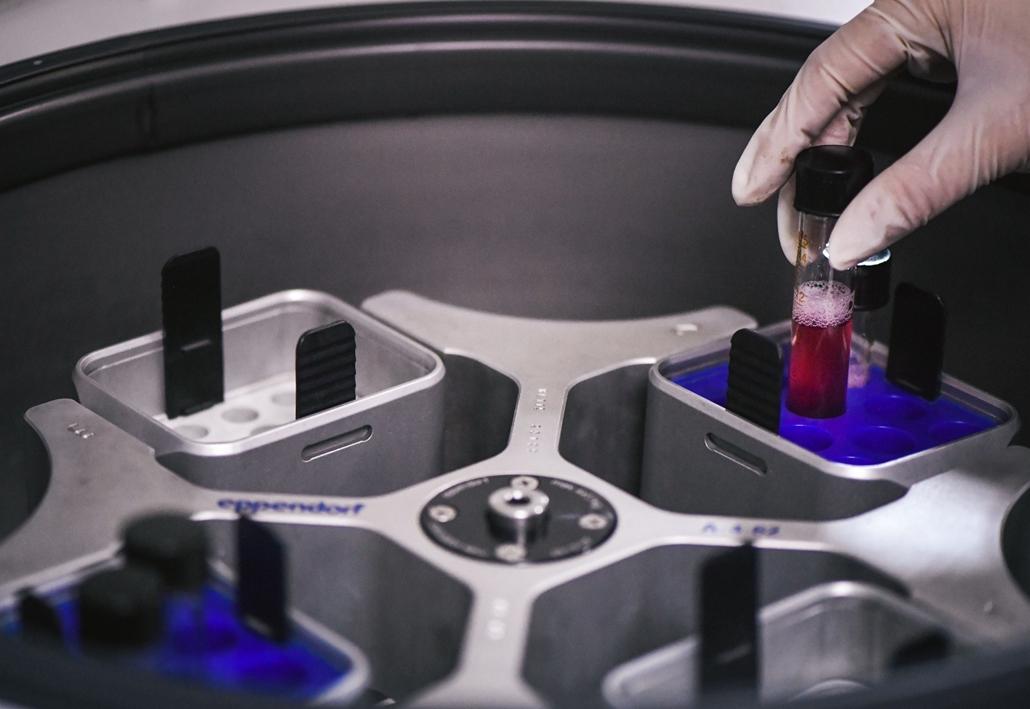 afp.17.12.01. - Csangcsun, Kína: Mintát helyeznek egy sejtcentrifugába egy AIDS-vakcina kutatásával foglalkozó laboratóriumban Kínában 2017 decemberében. - aids világnap nagyítás