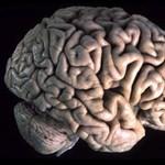 Fittyet hány a fájdalomra az elfoglalt ember agya