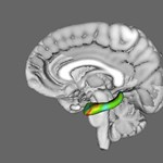 Gyorsabban öregszik a férfiak agya
