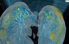 Egészen félelmetes, mit művel a tüdővel a koronavírus