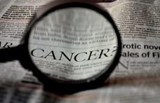 Új ráklabor nyílt Szegeden, hogy korábban kiszúrják a daganatos elváltozásokat