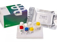Erdélyi magyar kutatók tesztjével gyorsan ellenőrizhető, átesett-e valaki a koronavírus-fertőzésen