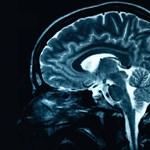 Már okostelefonnal is diagnosztizálhatunk agysérülést