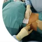 Így tanítják az orvosokat: napszemüveggel készült élő videón követték a műtétet
