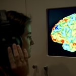 A nők fiatalabbnak tűnnek az agyi működésük alapján, mint a férfiak