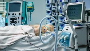 Szlovák egyetemisták lélegeztetőgépet terveztek - 80 euróból elkészíthető