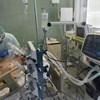 A Semmelweis Egyetem megmutatta egy 30-as beteg CT-felvételeit, aki két hétig volt lélegeztetőgépen