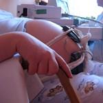 Kutatás: Terhes nők is alávethetik magukat kemoterápiának