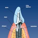 Csökkenhet a fogbeültetés ideje